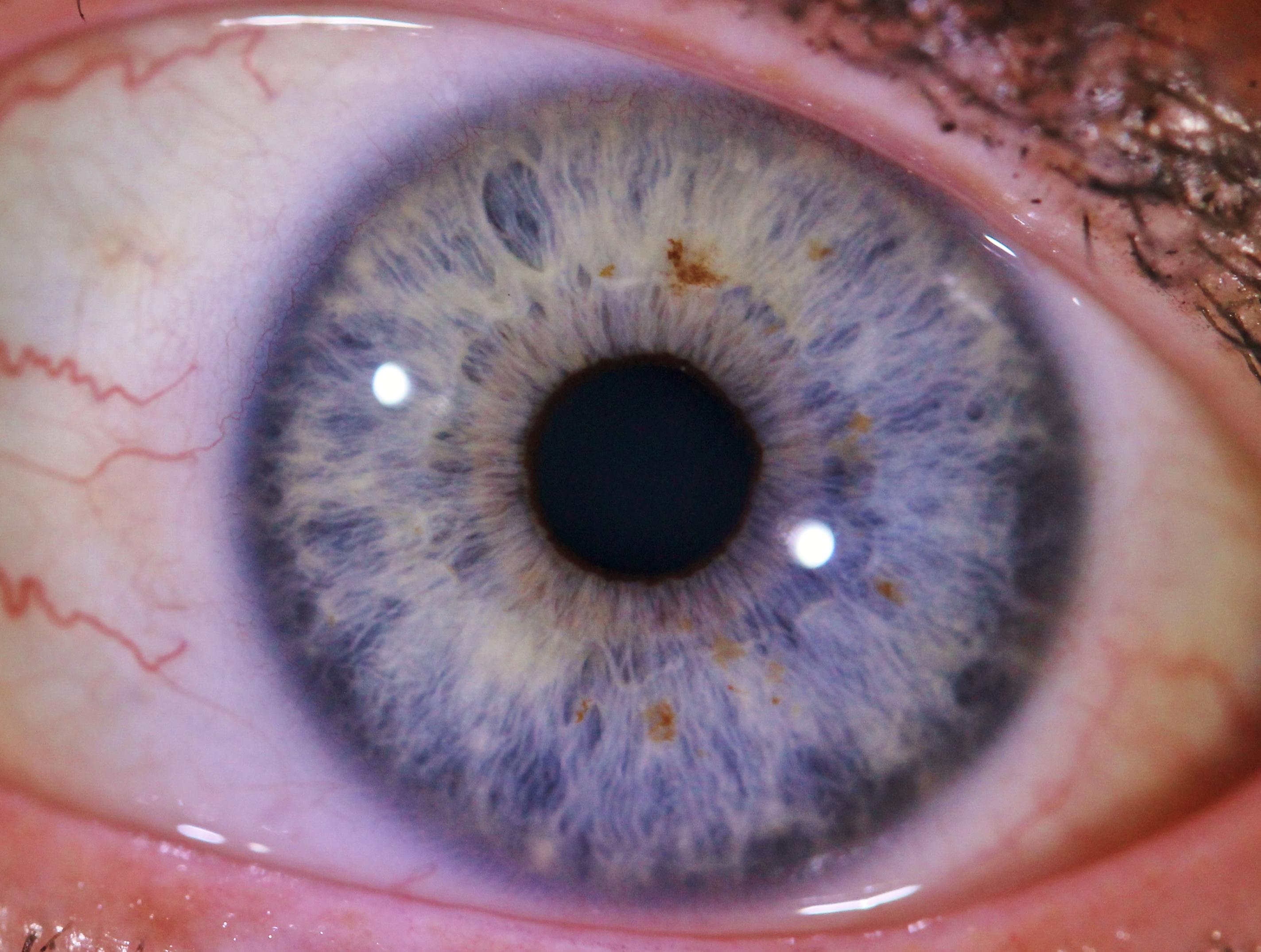 IRIDOLOGIE Déminéralisation, inflammation, acidification : comment l'iris parle