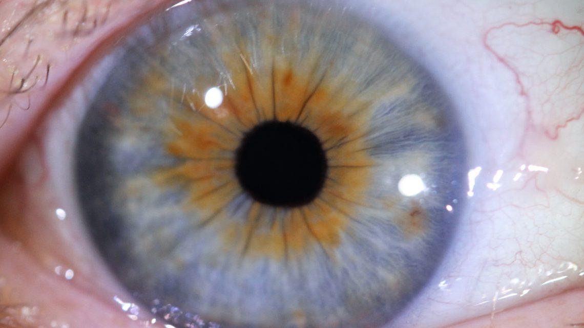 IRIDOLOGIE : Ce que vos iris nous révèlent